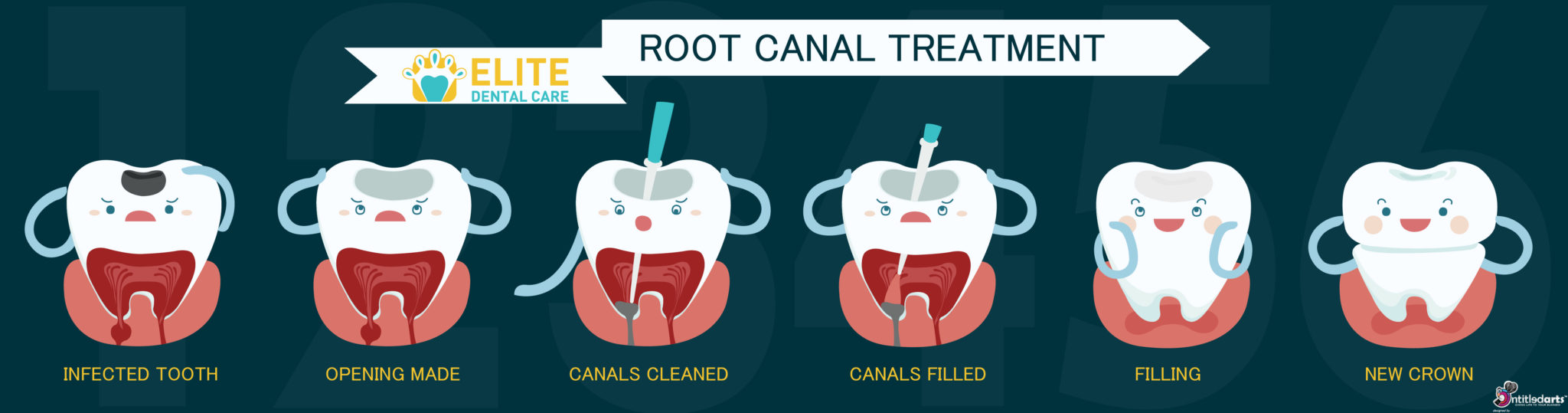 root canal treatment elite dental care tracy