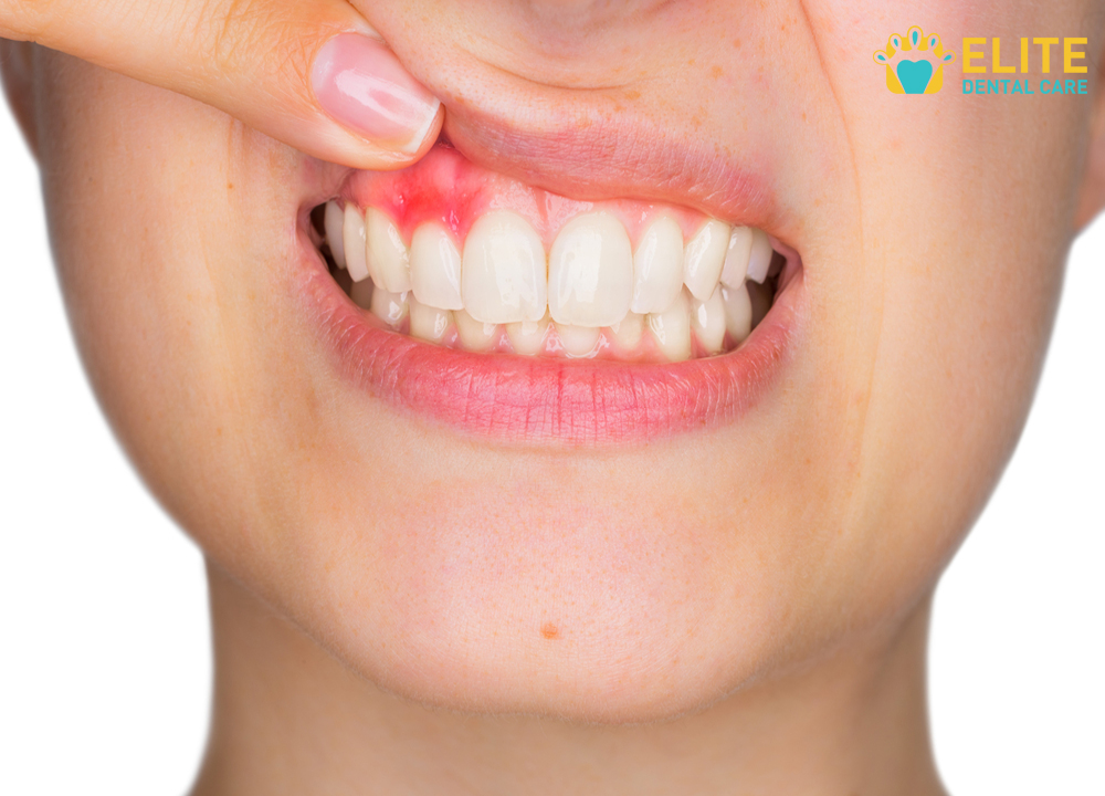 Common Causes of Sensitive Teeth - Elite Dental Care