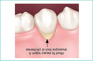 Common Causes of Sensitive Teeth1