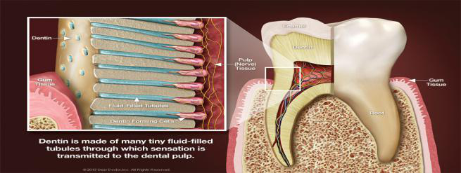 Exposure of Dentin Layer