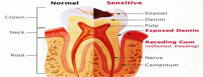 Common Causes of Sensitive Teeth3