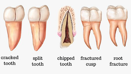 Cracked Tooth Symptoms, Treatments, and Recovery