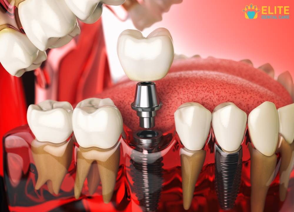 Dental Implant And How Crucial Replacing Teeth