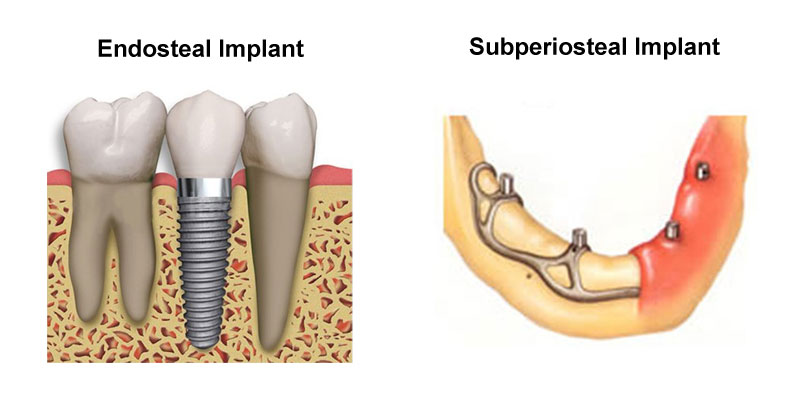 Endosteal Implants & Subperiosteal Implants