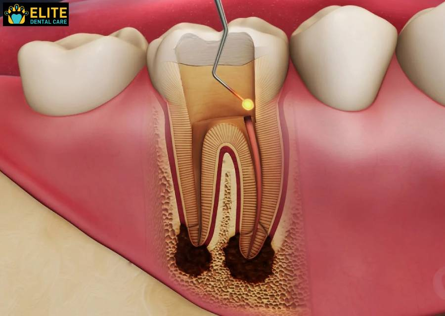 Filling the Root Canal - Elite Dental Care Tracy
