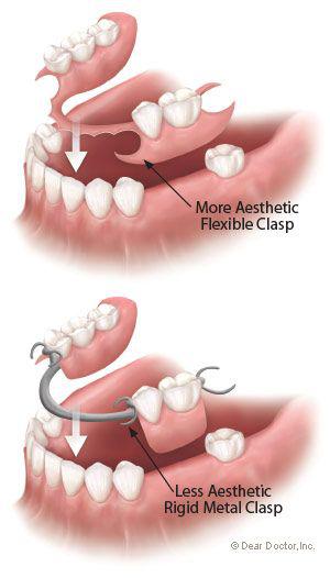 Flexible Dentures