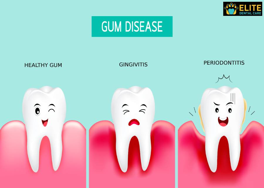 How to Know If You Have Gum Disease and What to Do About It – Elite Dental Care Tracy
