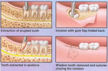 Removal of Wisdom teeth