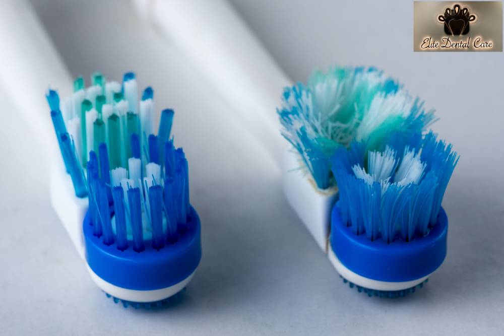 When Should You Replace Your Toothbrush – Elite Dental Care Tracy