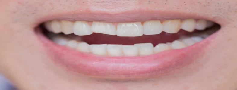 broken or chipped teeth