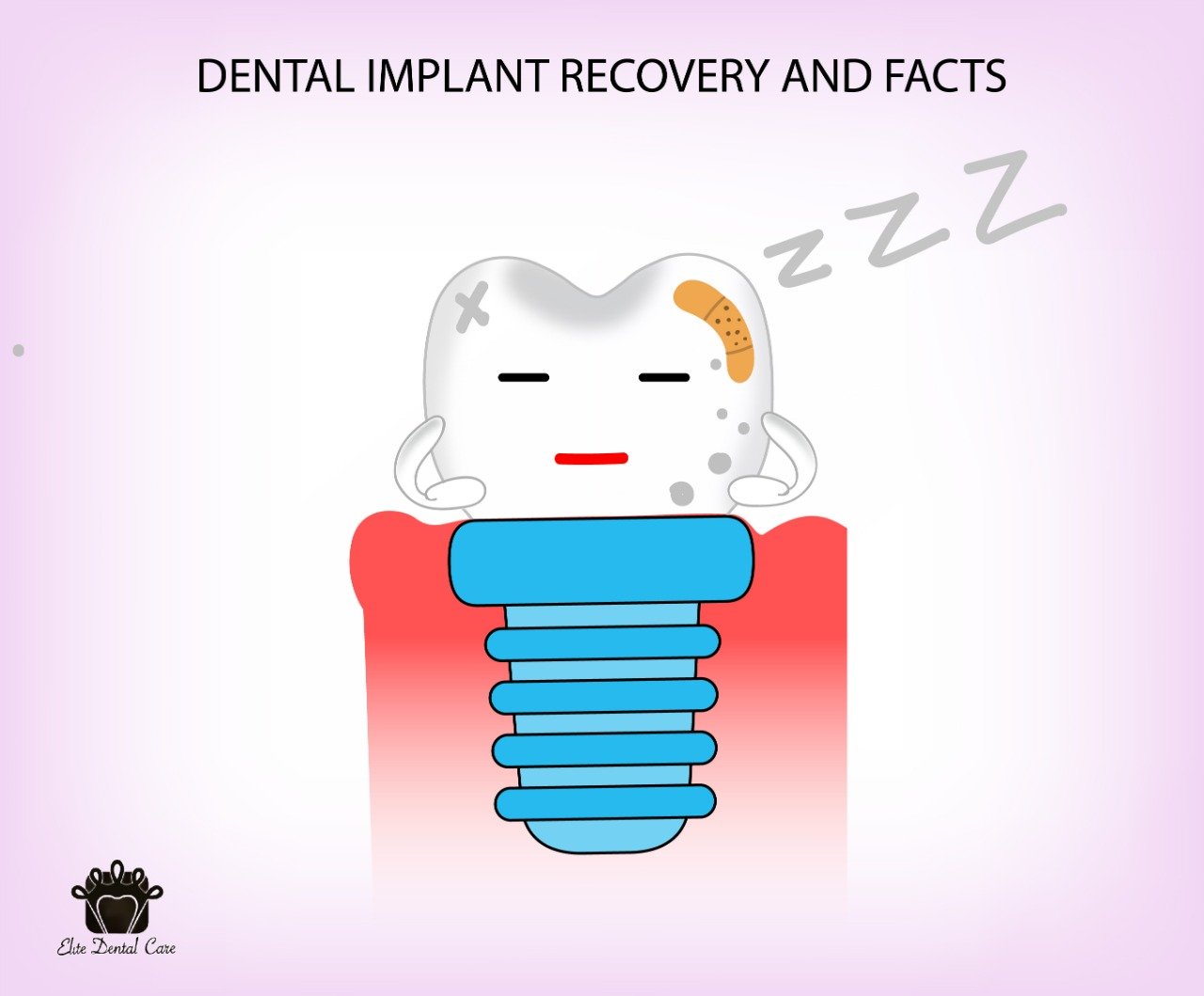 Dental Implants Recovery and Facts