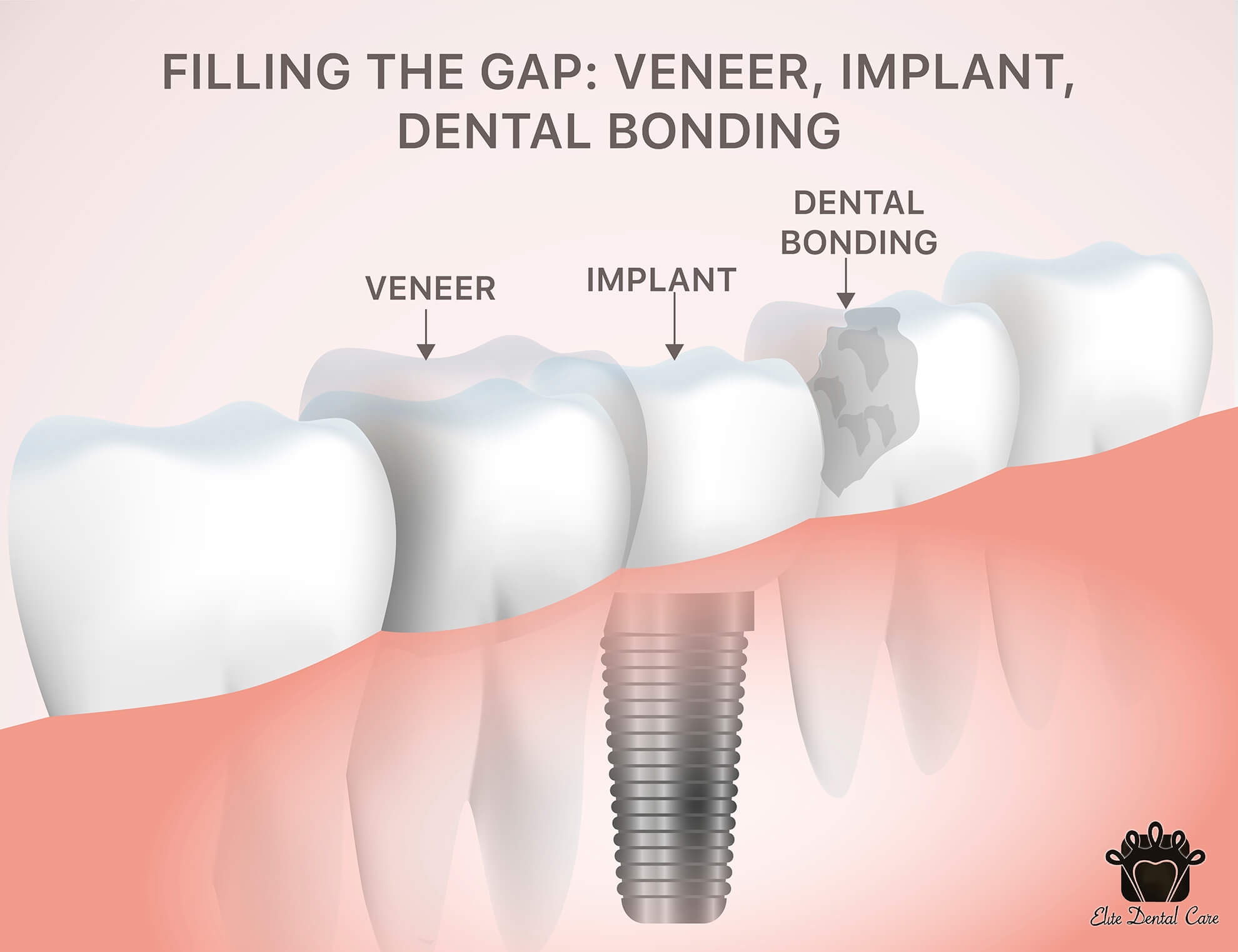 Filling the Gaps: Veneers, Implants, Dental Bonding