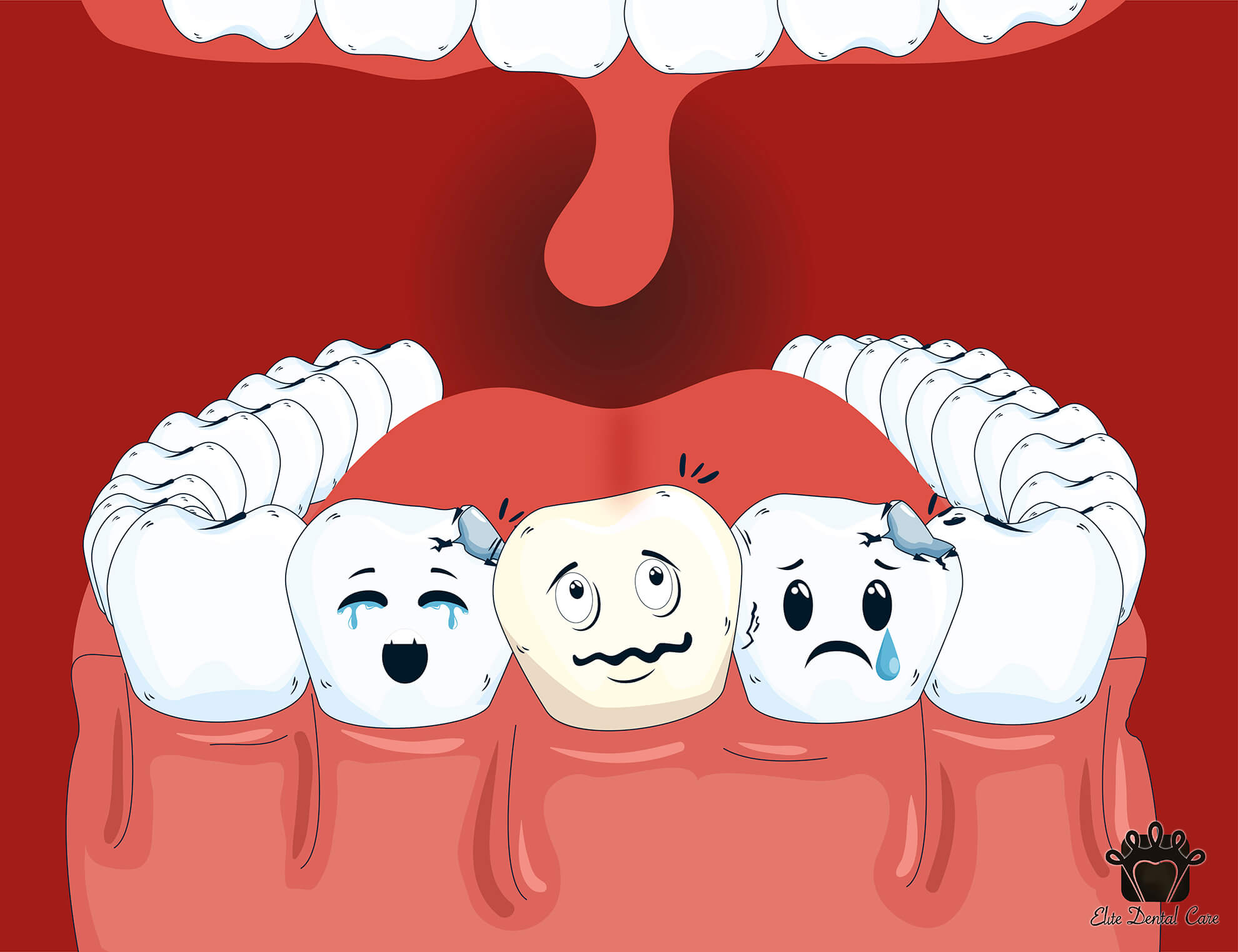 Oral Hygiene and its Importance
