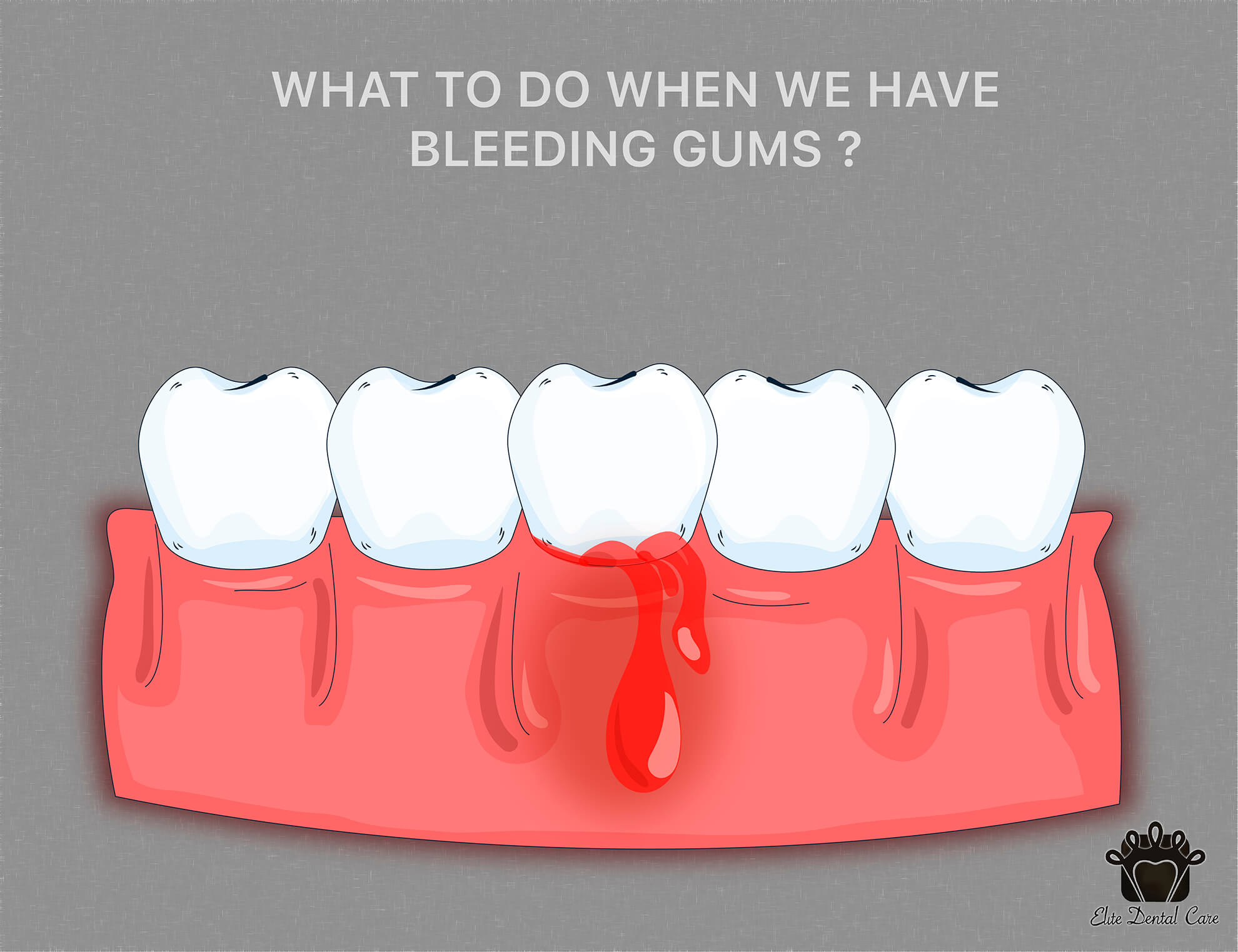 What Do You Do When Your Gums Are Bleeding