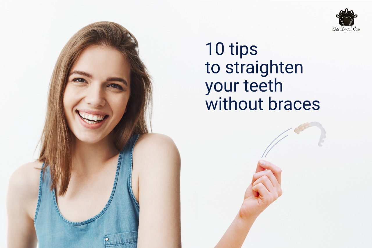 Top ten tips to straighten your teeth without braces