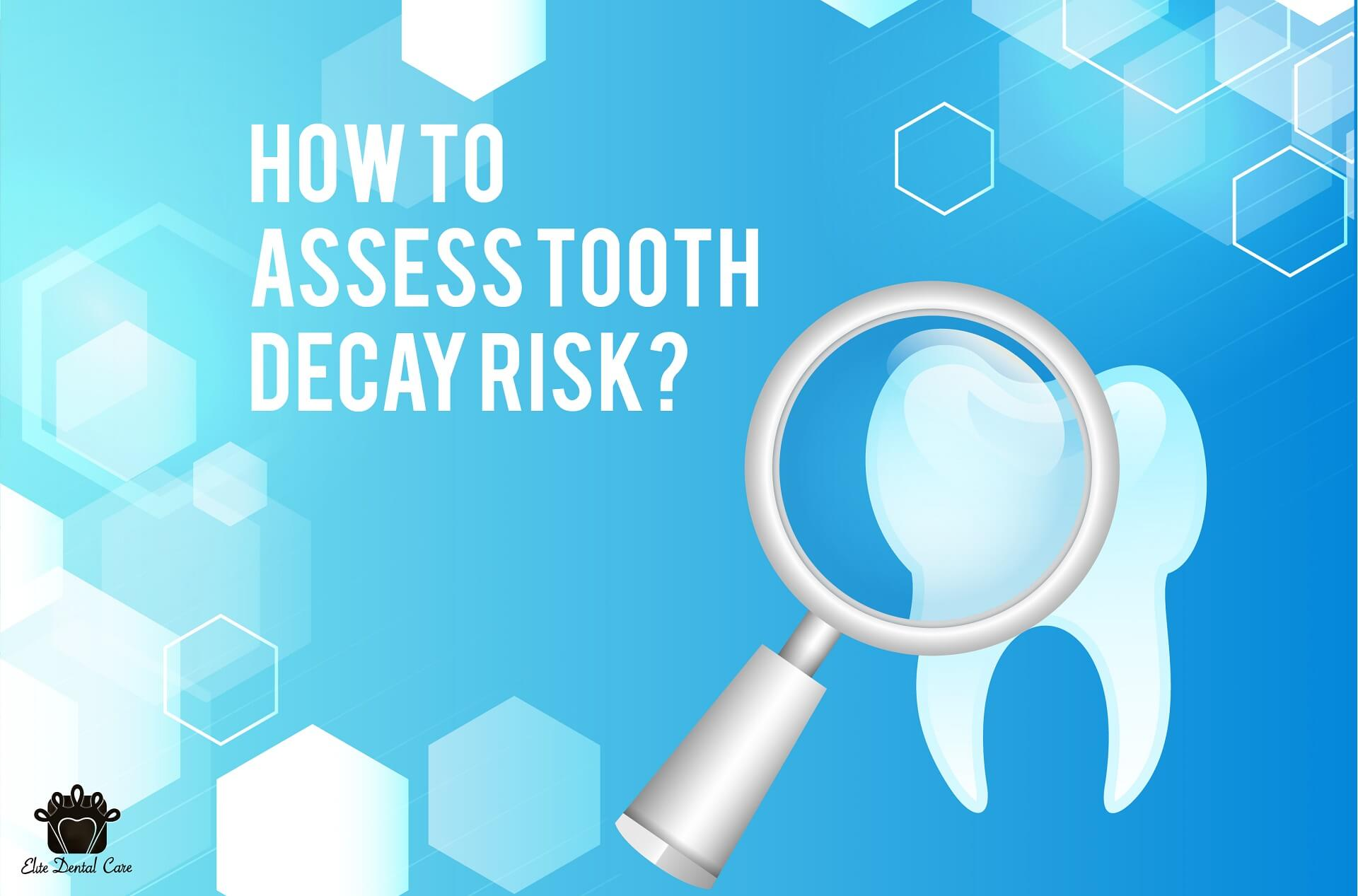 Top 5 risks assessment for tooth decay