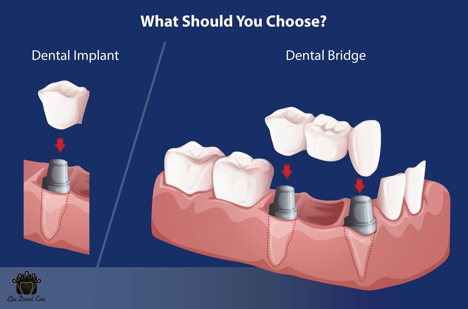 Dental Implants v/s Dental Bridges